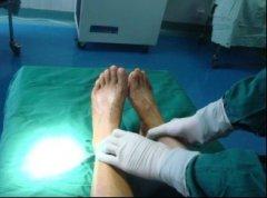 显微断指(肢)再植/再造术